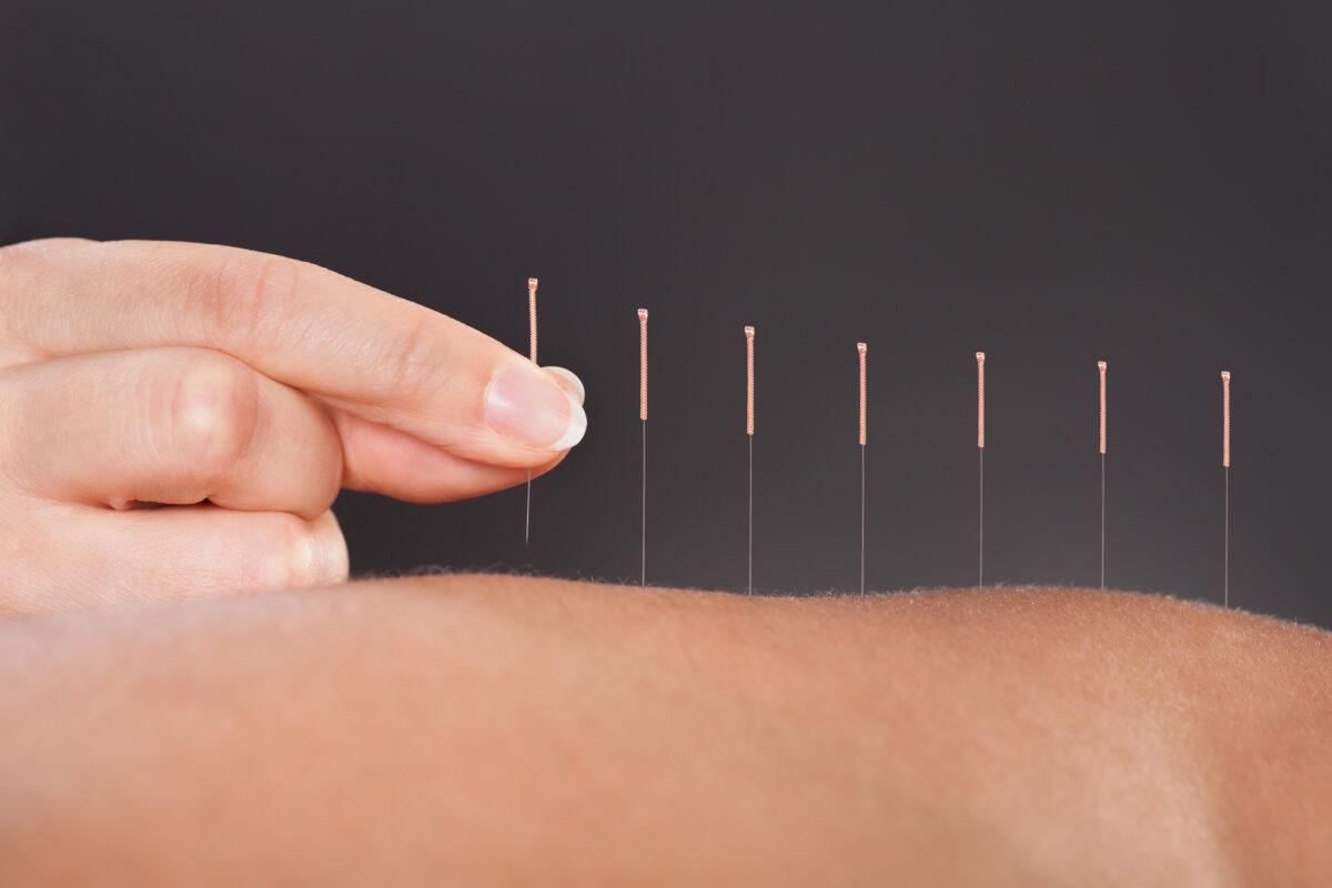 acupuntura-1200x800.jpg