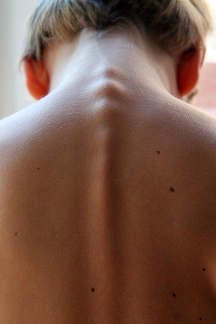 spinal-column-246273_640.jpg?time=1579442072