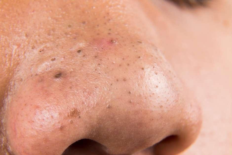 Remedios naturales para Espinillas dentro de la nariz