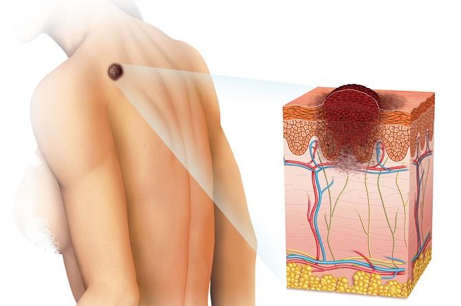 Tipos de cáncer de piel y cómo detectarlos