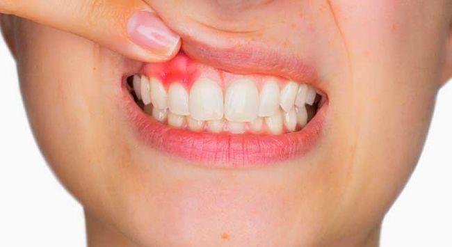 Remedios caseros para las encías inflamadas