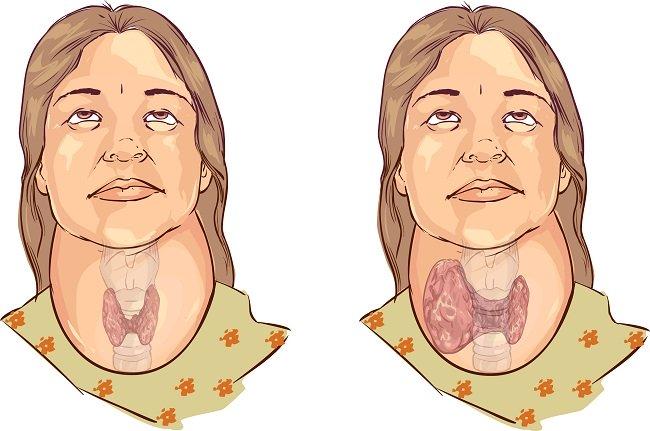 Qué es el bocio, sus causas, factores de riesgo y tratamientos naturales