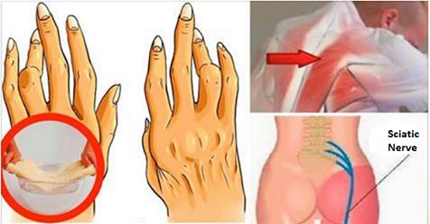 Esto elimina el dolor de artritis, dolor de espalda y ciática.