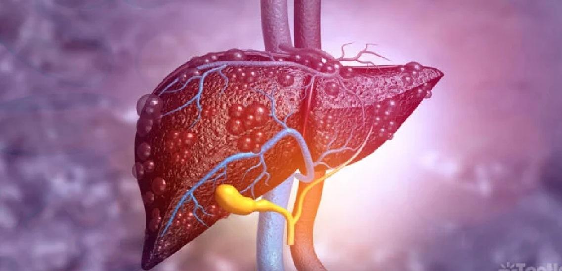 ¿Hígado graso? 8 remedios caseros y tips para la dieta