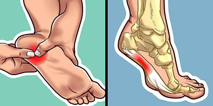 Qué hacer si te duele el talón por la mañana o cada vez que te pones de pie