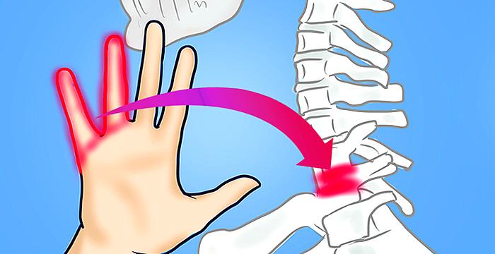 10 Causas del adormecimiento de las manos que indican que debes visitar al médico