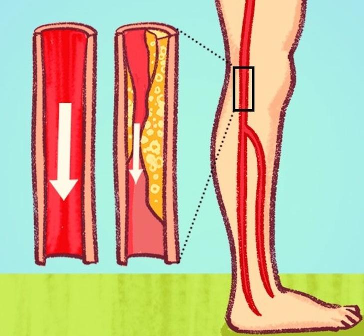 7 Señales peligrosas de arterias obstruidas que a menudo ignoramos