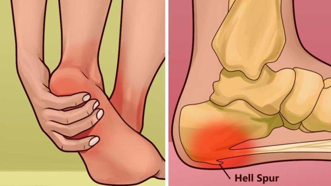 Remedios naturales para curar el dolor en los talones