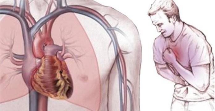 Angina de pecho, el dolor puede ser signo de algo más mantente alerta.