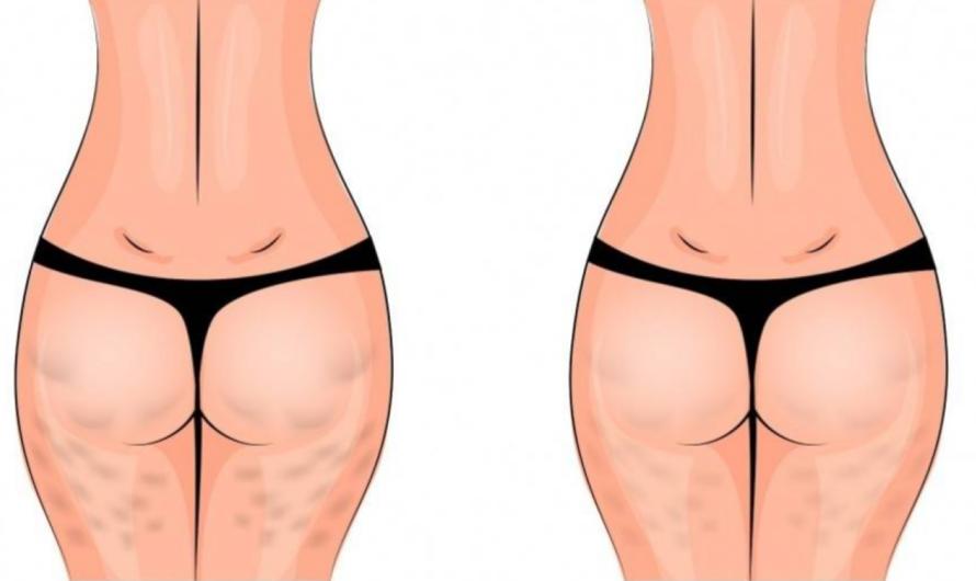 6 Ejercicios que te ayudarán a reducir la celulitis en semanas
