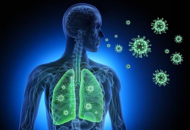 Neumonía: causas, síntomas y cómo se contrae