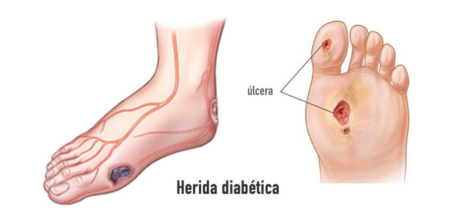 Cómo cuidar los pies y heridas en personas con diabetes