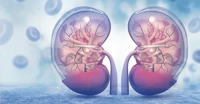 Síntomas de Pielonefritis y cuáles son sus causas