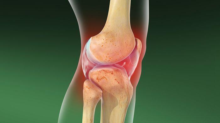 Los ejercicios que son adecuados para la artrosis de rodilla