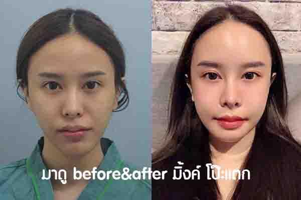 before&after มิ้งค์ โป๊ะแตก