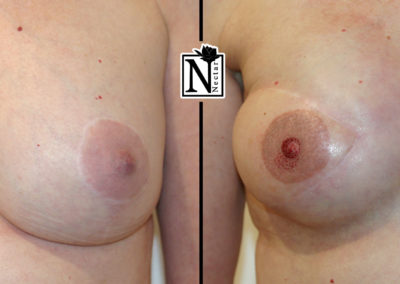Areola Micro-Pigmentation by Nicole