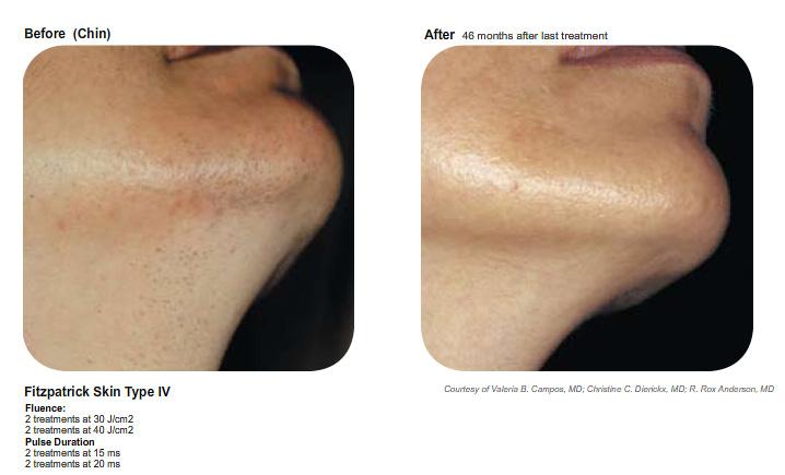 laser hair removal san diego