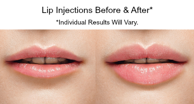 lip injections San Diego