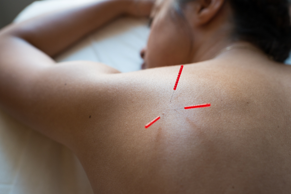 Dry Needling Vs Acupuncture_House of Healer