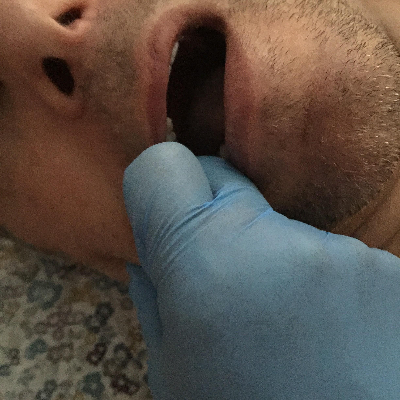 Mouth Massage