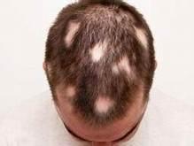 alopecia patch