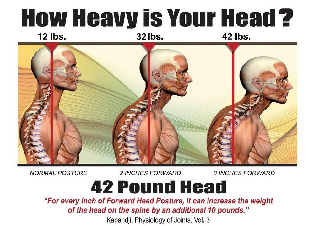 42 lbs head - Postural Syndrome