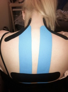 Kinesio Tape - Mid back, upper back, and neck strain due to postural syndrome - Pregnancy Issues
