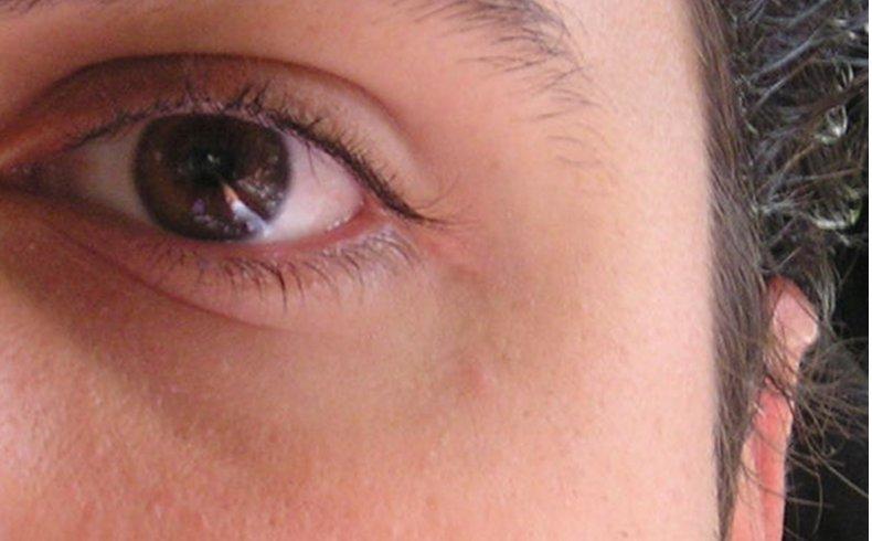 Investigadores de la UA desarrollan un software de alta precisión para diagnóstico de la sensibilidad ocular