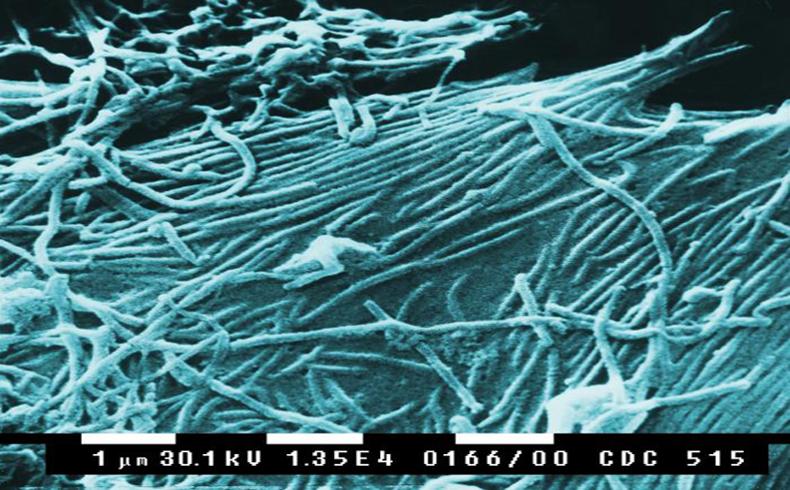 """Secretario de Relaciones Exteriores: El brote del Ebola podría ser una """"amenaza"""" para Gran Bretaña"""