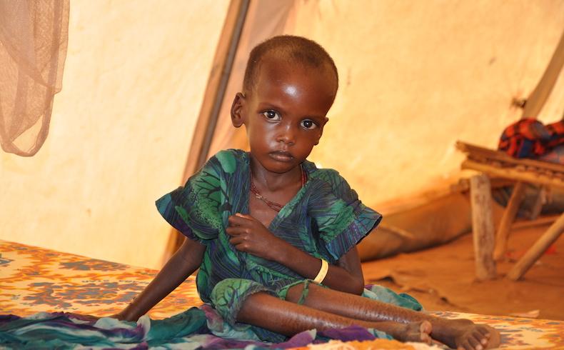 3,1 millones de niños menores de cinco años mueren cada año en África por desnutrición