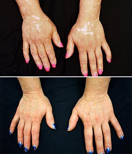 After five months of treatment, the patient's hands show significant repigmentation. (Photos by Dr. Brett King)