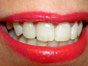 dente-25