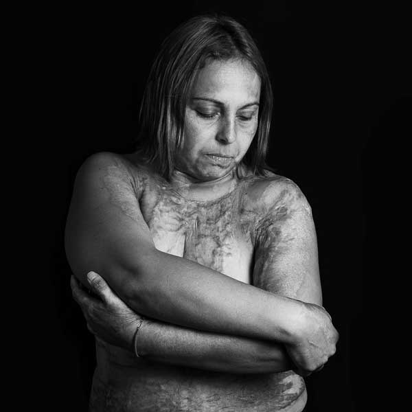 Karina, la mujer que lleva las marcas de la violencia que sufrió