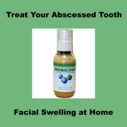 Abscessed Tooth Swelling