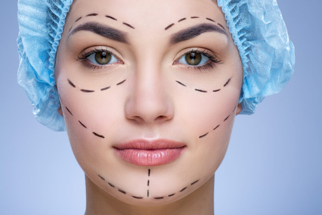 Woman with markings on face for plastic surgery.