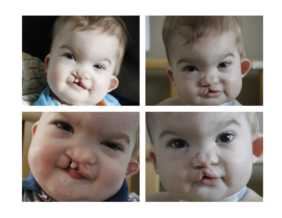A couple of Before and After stage one cleft lip and palate surgery you were all praying us through back in May. What a difference already!