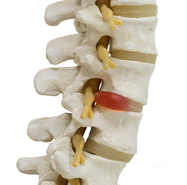 portland neurosurgeons, neurosurgeons portland, spine pain relief, back pain relief
