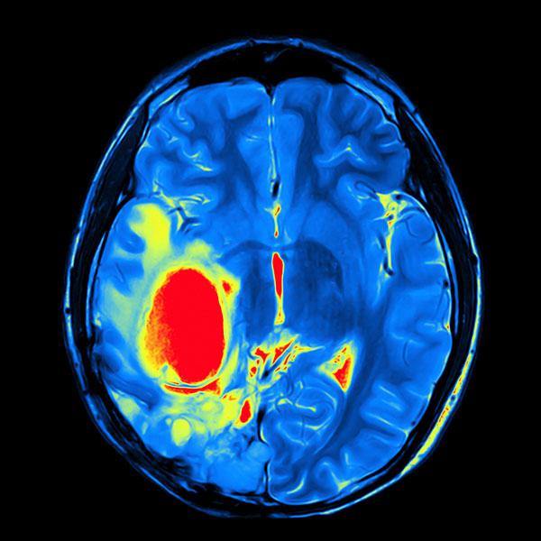 brain surgery, portland neurosurgeons, neurosurgeons portland, brain tumors