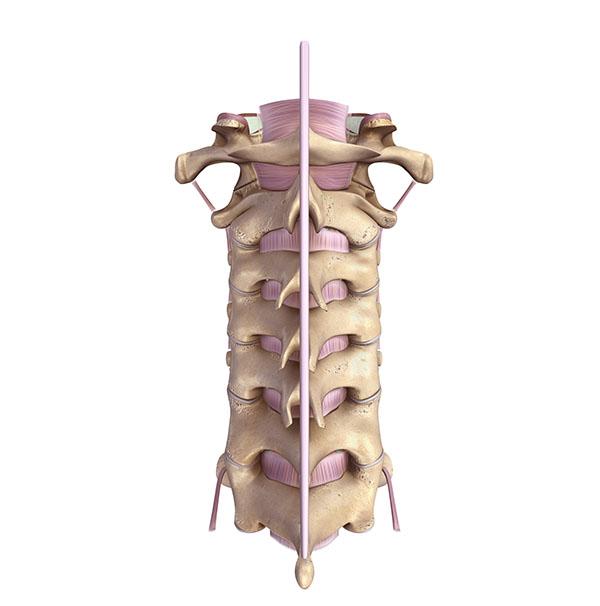cervical decompression, portland neurosurgeons, neurosurgeons portland,