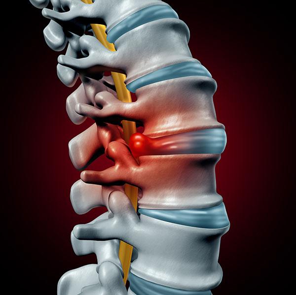 herniated disc, neck pain, portland neurosurgeons, neurosurgeons portland, spine pain relief, back pain relief