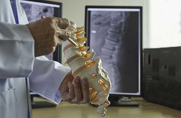 dr. soldevilla of northwest neurosurgical associates demonstrates a herniated disc
