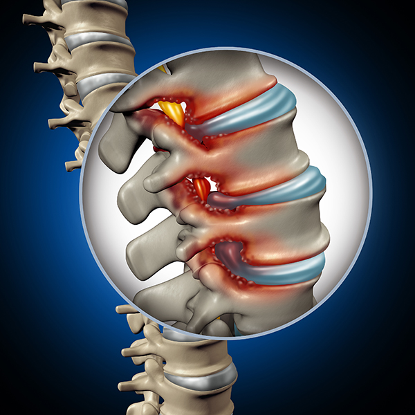 medical illustration showing spinal stenosis in lower back
