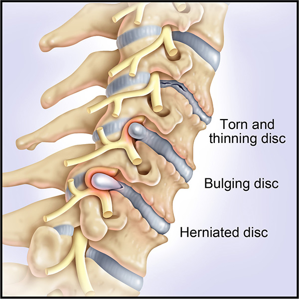 total disc replacement, portland neurosurgeons, neurosurgeons portland,