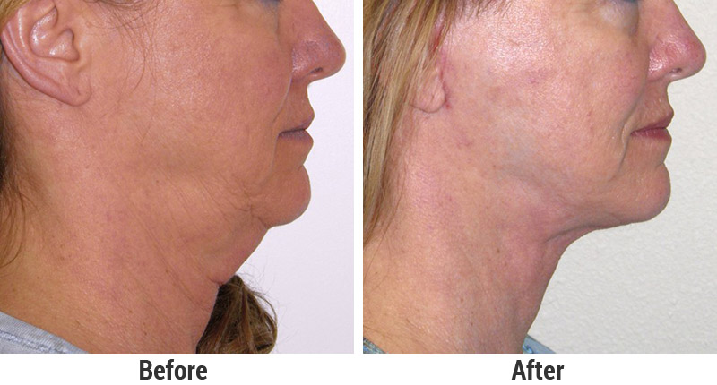 Face and Neck Lifts