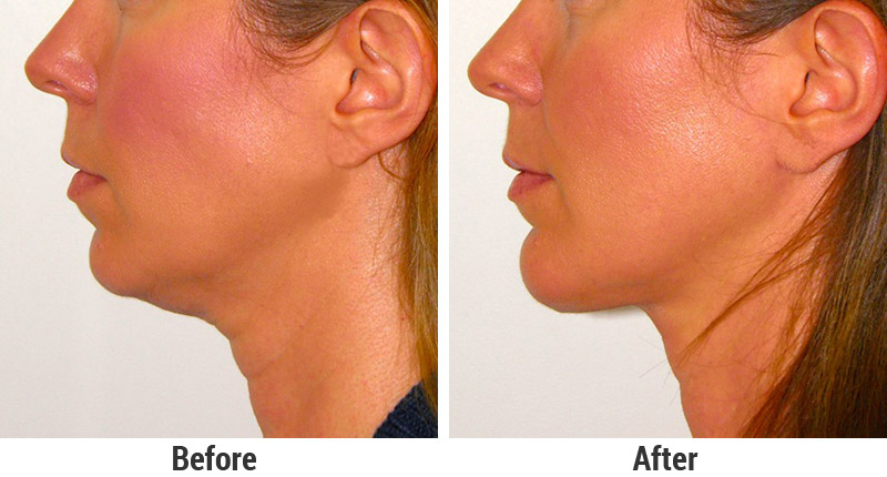 Chin Implants