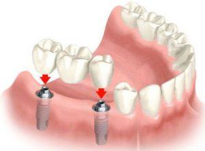 Bridges and Dentures