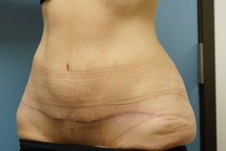 Reconstructive surgeries