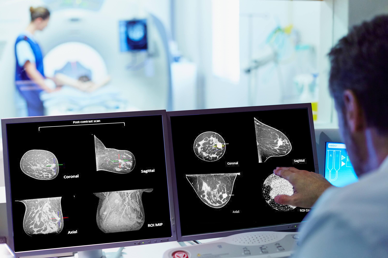 Izotropic scan graphic examples