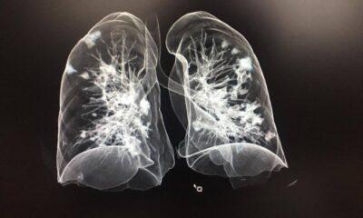Radiografías como detección del Covid-19 en México