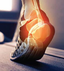 Photo of a human foot bones inside of a running shoe